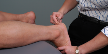 ASTYM treats Ankle and Foot Pain